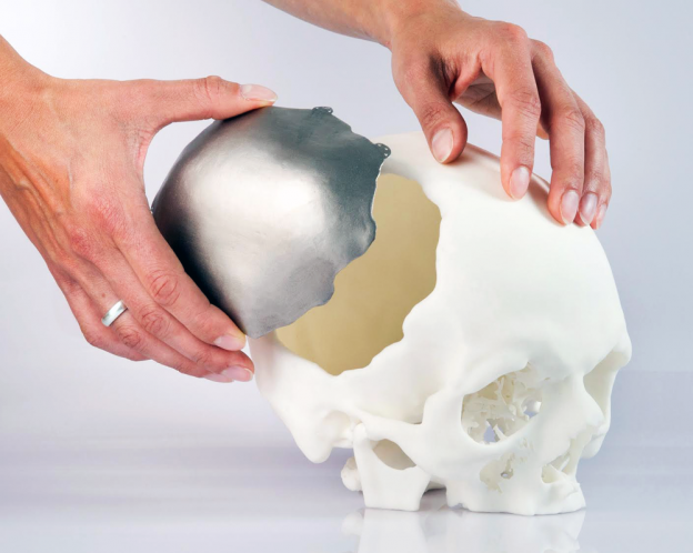 3D-printed-cranial-implant-approved-by-EU - Image Courtesy of OPM